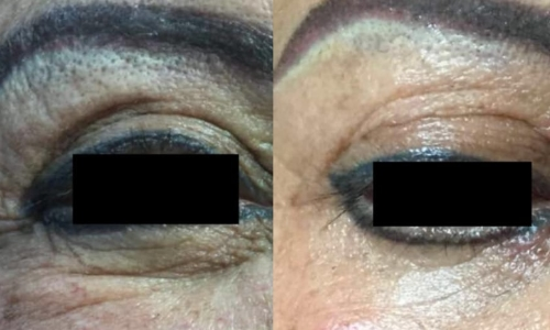 Image displaying Before and After PRP Skin Treatment Orlando