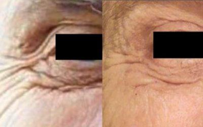 Autologous Platelet Rich Plasma Skin Rejuvenation