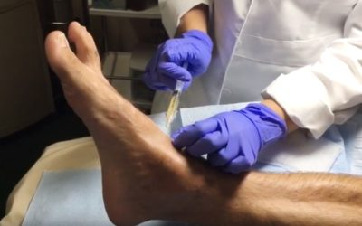 PRP Injections for Ankle Injury